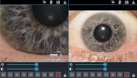 Eye Diagnosis screenshot 6