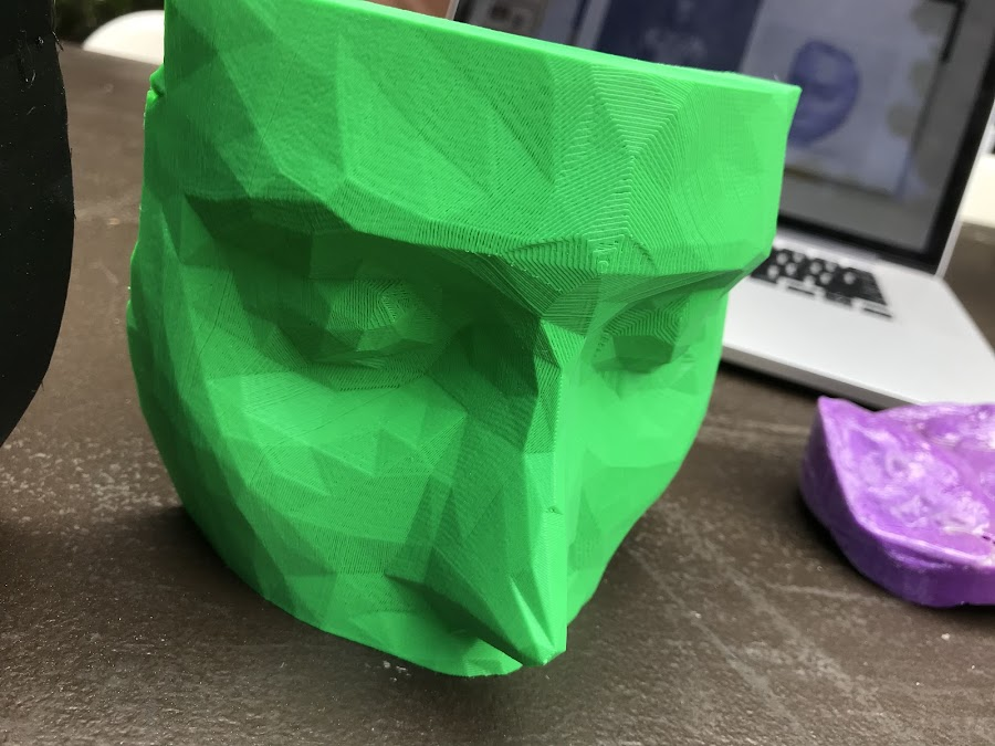 A custom scanned and 3D printed bolus for radiation therapy