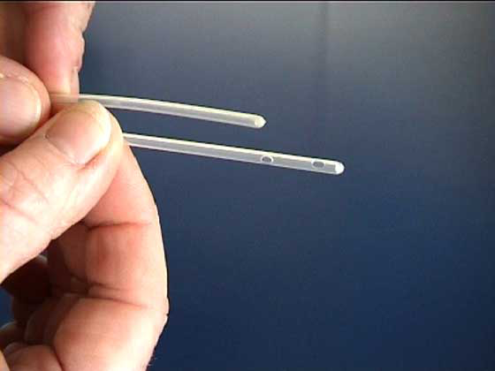 Urinary catheters with a single terminal hole are preferable to models with 2 side holes but they are difficult to obtain.