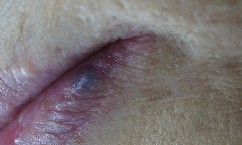bloedblaar lip laserbehandeling. Huidverbetering Dr. Charlotte Nelissen
