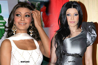 Photo: Almost everyone knows about Koena Mitra's infamous nose job. The Bengali actress has gone through it all: silicon implants, nose job and lip job. Sadly, the last two backfired and the girl lost a lot of money.