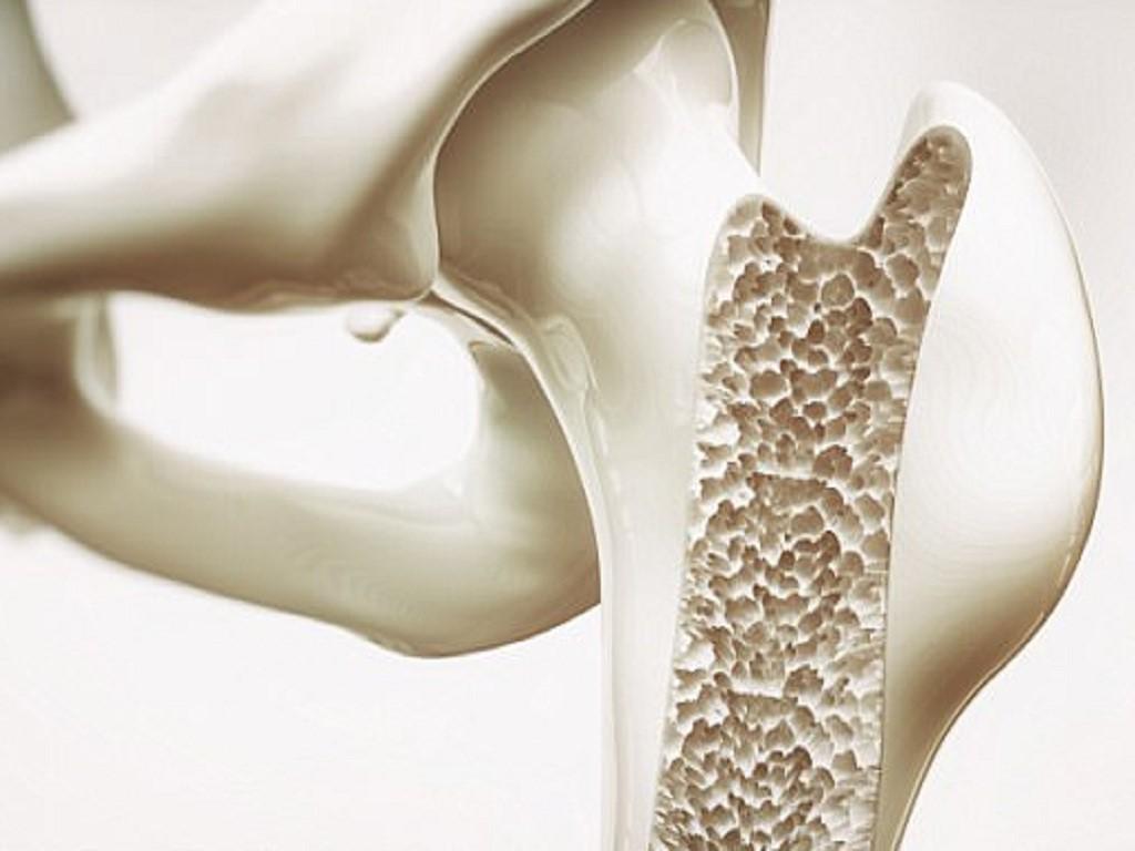 Collagen giúp phòng chống loãng xương khi về già