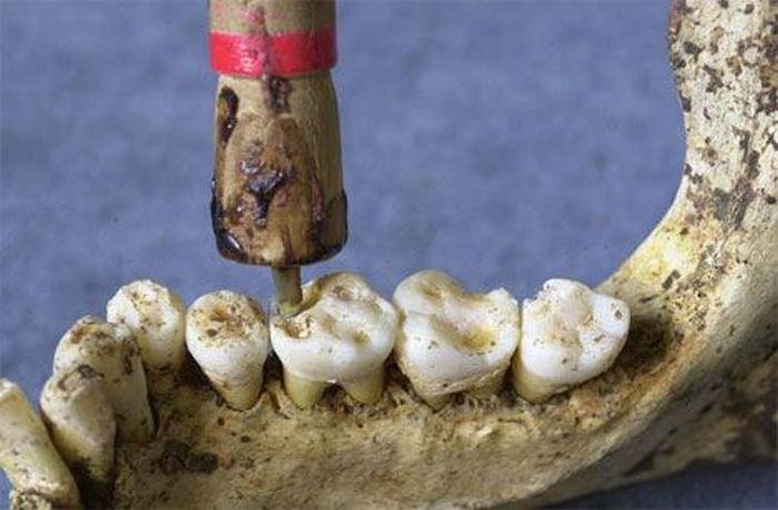 Odontologinis grąžtas