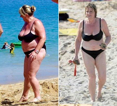 Before And After On The Left Is Fern At A Beach Back In  And On The Right The Tv Presenter Now Five Stone Lighter And A Size