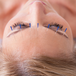 a lady with acupuncture needles in her forehead