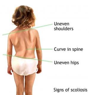 Scoliosis-01.jpg