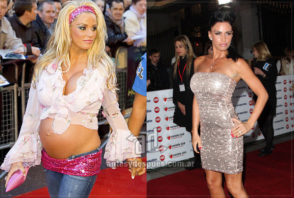 Antes y despues de Kate Price embarazada