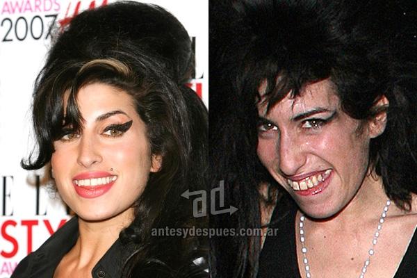 Amy Winehouse y sus nuevos dientes, antes y despues