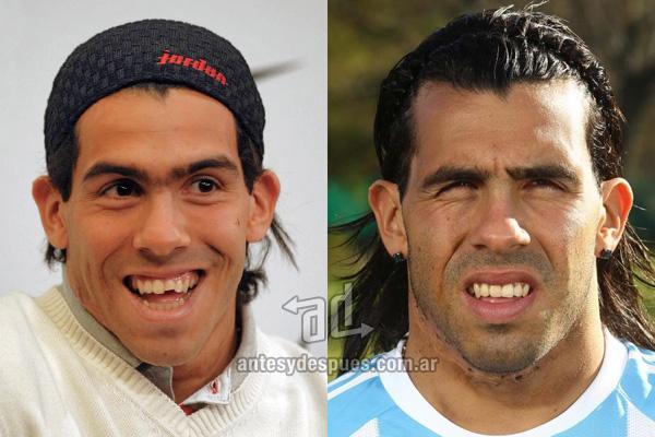 Carlos Tevez y sus nuevos dientes, antes y despues