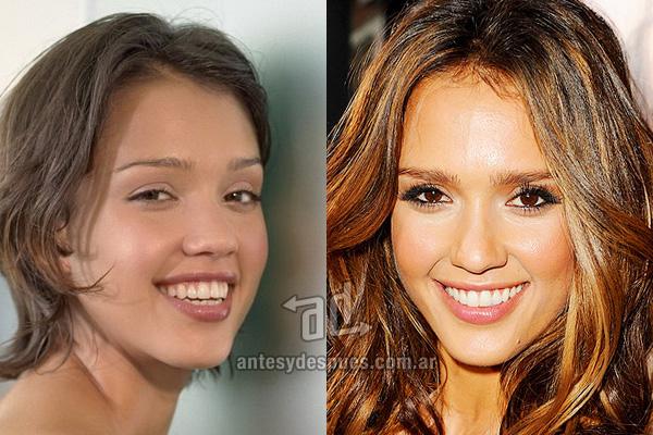 Jessica Alba y sus nuevos dientes, antes y despues