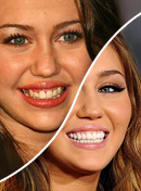 20 Famosos que se arreglaron los dientes