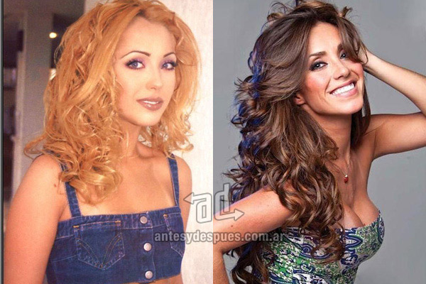 Anahi Puente breast augmentation
