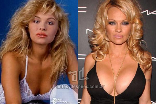 Los pechos operados de Pamela Anderson