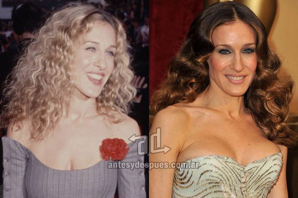 Sarah Jessica Parker breast augmentation