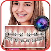 Braces Teeth Booth