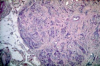 Photographs of EPI due to pancratic acinar and chronic atrophy and chronic pancreatitis