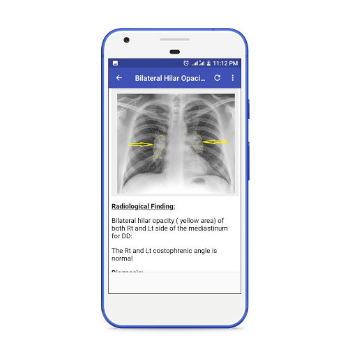 X-Ray Interpretation Guide Apk 1