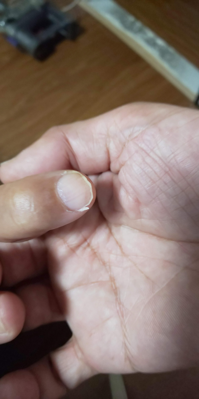20年もの間 悩まされてきた「爪の縦割れ」を素人の荒療治で根絶できないか やってみました。