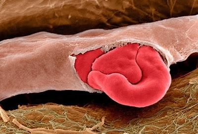 kapiler%20darah%20robek Foto foto mikroskop elektron (1) : Sel dan jaringan makhluk hidup