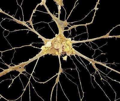 neuron Foto foto mikroskop elektron (1) : Sel dan jaringan makhluk hidup