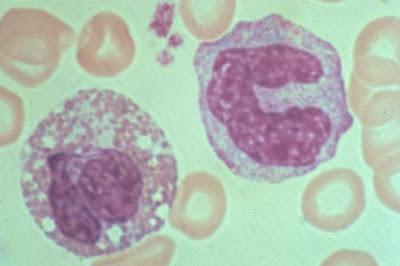 eosinofil Sistem Kekebalan Tubuh