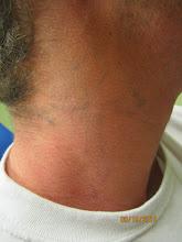 Photo: Pre 10th Laser Tattoo Removal Treatment at Las Vegas Dermatology