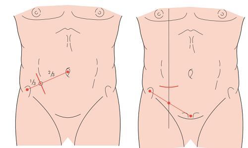 À esquerda, incisão de McBurney. À direita, incisão de Rockey-Davis. Retirado de: Baley & Love's Short Practice of Surgery.