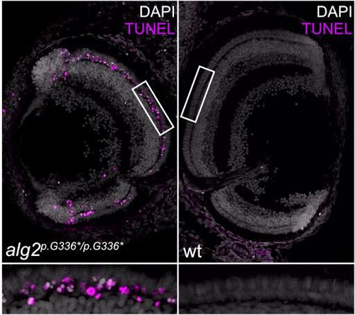 Rare genetic defect replicated in fish model