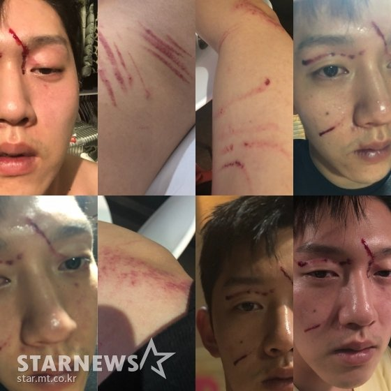 Choi Jong Bums Attorney Continued To Explain How Choi Jong Bum Was Assaulted By Goo Hara