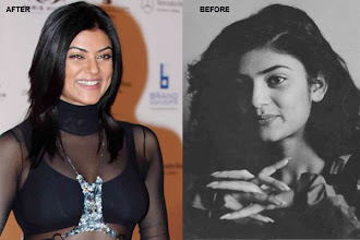 Photo: The husky voice beauty Sushmita Sen was one of the first ones in the present line of actresses, to go under the knife for cosmetic surgery. The former Miss Universe was perhaps the first actress who openly admitted that she wore silicon implants.