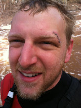 Photo: Chaska kayaker Tony Locken shows off his latest kayaking wound. He had stitches on both sides of his head from a mishap on the Split Rock River earlier in the week.