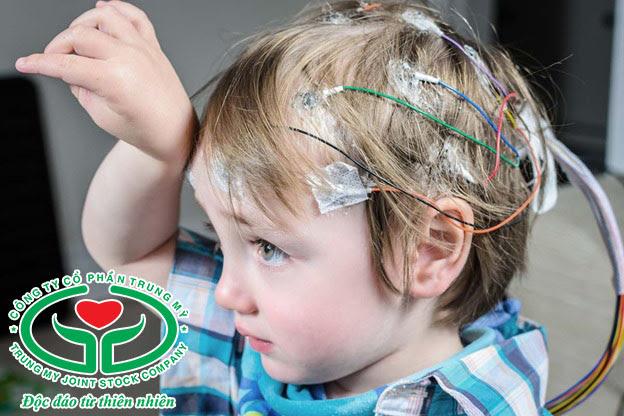 Động kinh nhược cơ thường gặp ở trẻ nhỏ