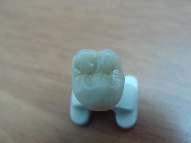 خطوات زرعة أسنان مصورة واحد DSC02862.JPG