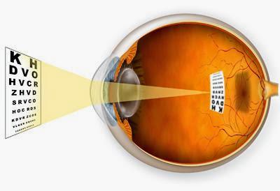 Suplemen Mata Rabun Jauh Miopia
