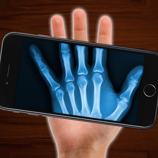 X-Ray scanning bones (simulation)