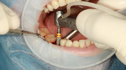 Implante dental, todo lo que debes conocer antes de acudir a consulta