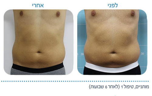 טיפולים לא פולשניים, לפני ואחרי