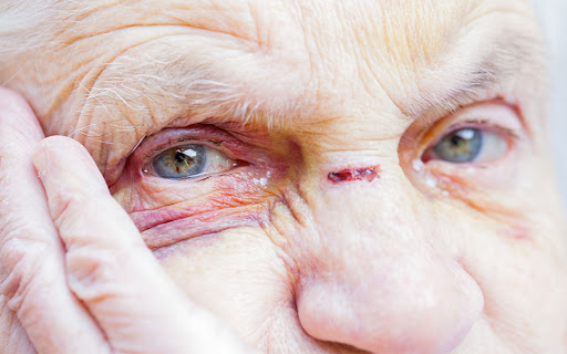 Trauma in Older Adults