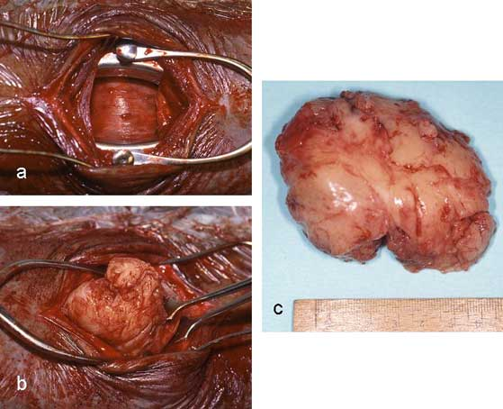 Removal of intratracheal rhabdomyoma in dorsal recumbency: tracheotomy (a), removal of neoplasia (b), removed tissue (c).