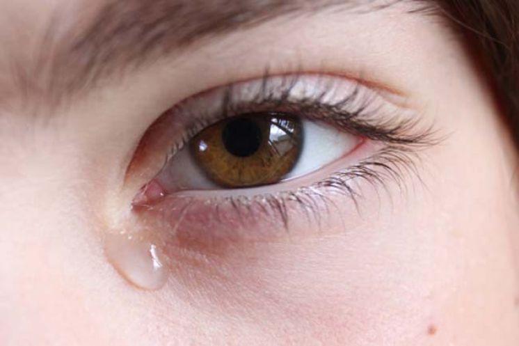 Chảy nước mắt trong u tuyến lệ