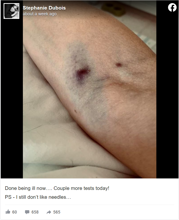 Severe bruising at the site of the AstraZeneca injection UK model Stephanie Dubois took in her final post before passing away.