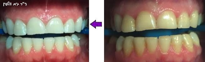הלבנת שיניים, אסתטיקה דנטלית - ד''ר גיא וולפין