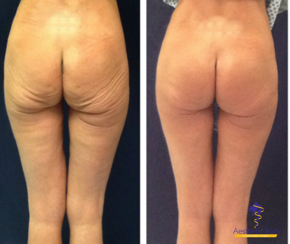 Sculptra Butt Lift - Before and After 2.5 vials on either side