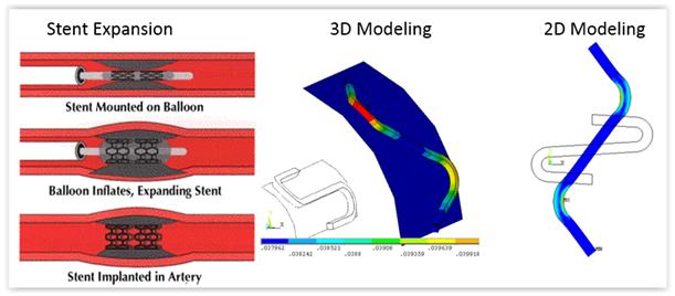 ANSYS Две тестовые модели и расположение точек с максимальными напряжениямиМоделирование медицинского стента с использованием представления трёхмерного тела в виде развёртки на плоскость