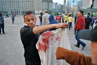 Photo: Another bloody shirt of one of the protesters hit by live round fire in the attack.