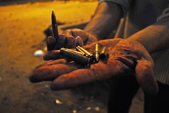 Photo: Bullets used by the army displayed in the bloodied hand of one of the protesters.