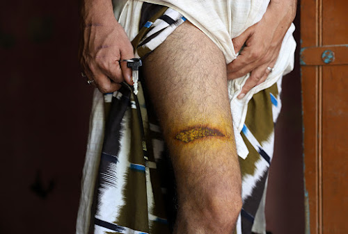 A resident of Taprana showing the injury on his leg. He said that police personnel beat him with a lathi.. Shahid Tantray for The Caravan