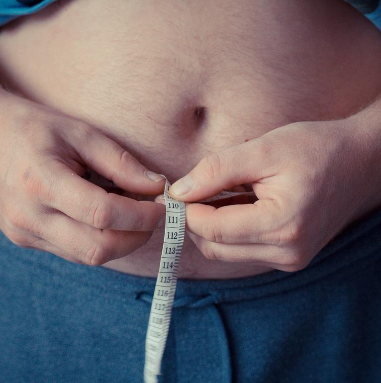 La obesidad es una enfermedad crónica que consiste en la acumulación de grasa en el cuerpo.