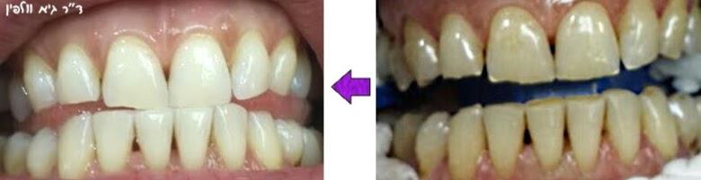 הלבנת שיניים תוך שעה במרפאה, אסתטיקה דנטלית - ד''ר גיא וולפין