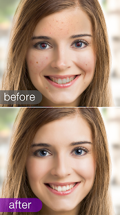 Visage Lab – face retouch- screenshot thumbnail